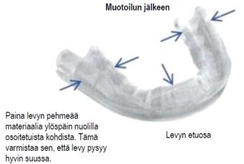 Hampaiden narskutteluun hammassuoja ja sen uudelleen muotoilu